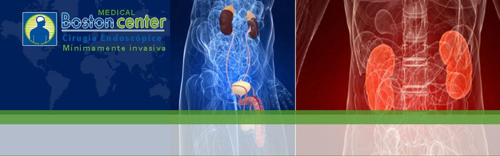 Tratamiento de cálculos por endoscopía y litoptricia extracorpórea